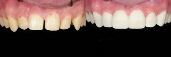 Veneers1 beforeafter1