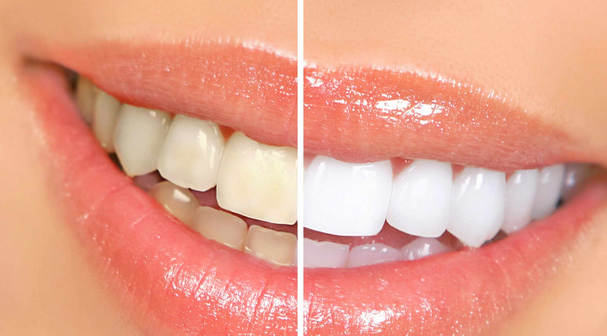 whitening dental